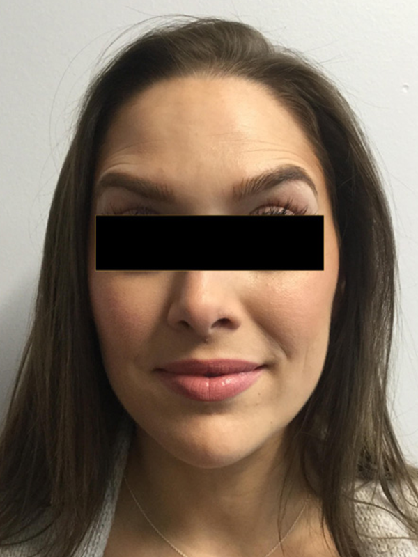 Botox® and Dysport® Before and After Pictures O'Fallon, IL