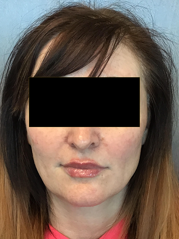 Lips Before and After Pictures O'Fallon, IL